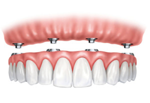 ball retained dentures